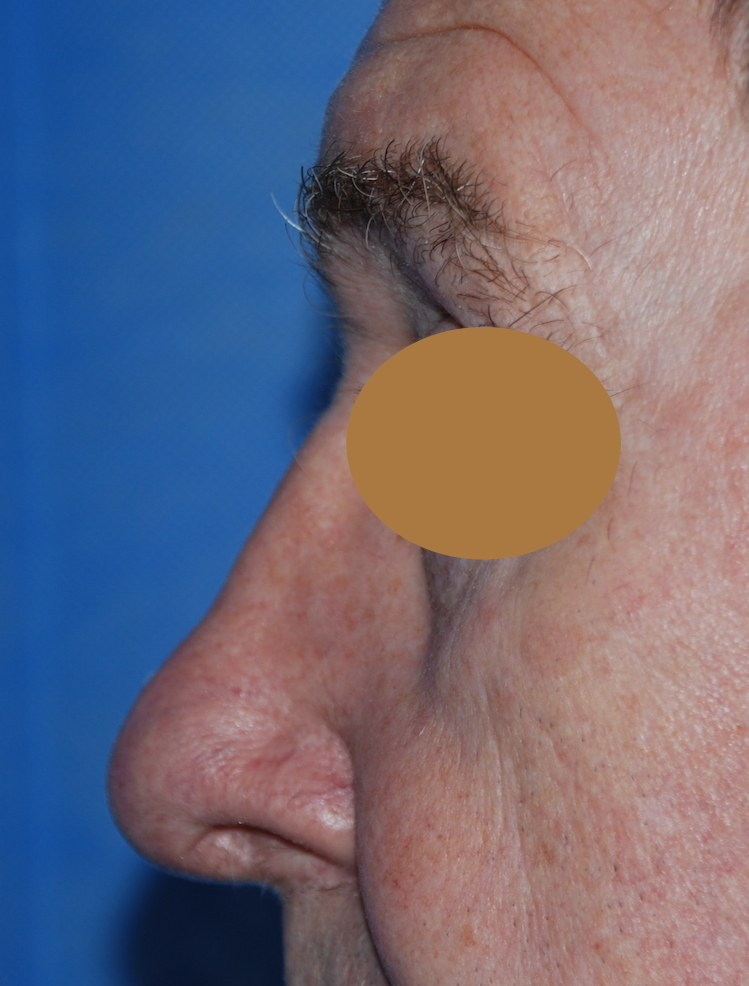 rhinoplasty oliver harley plastic surgeon