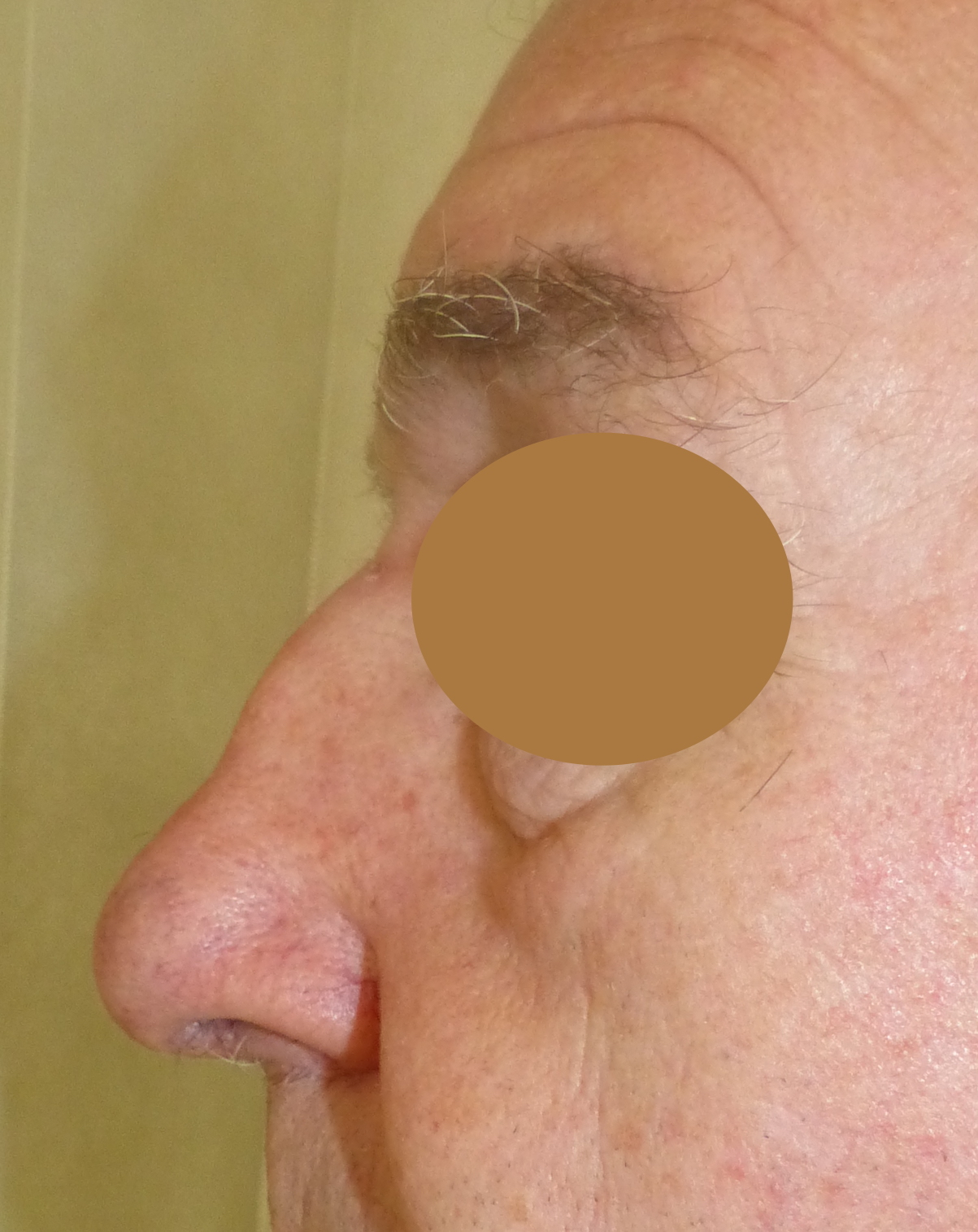 male nose job harley cosmetic surgery