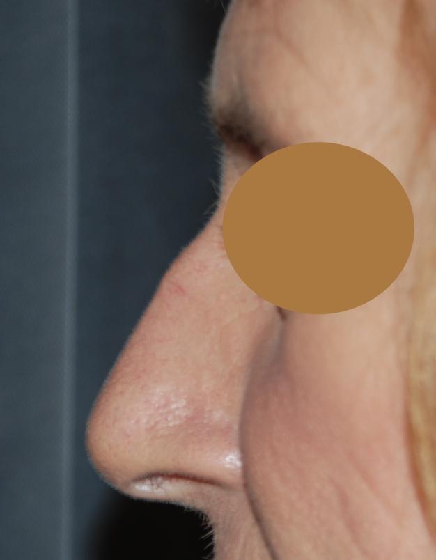 rhinoplasty sussex brighton harley