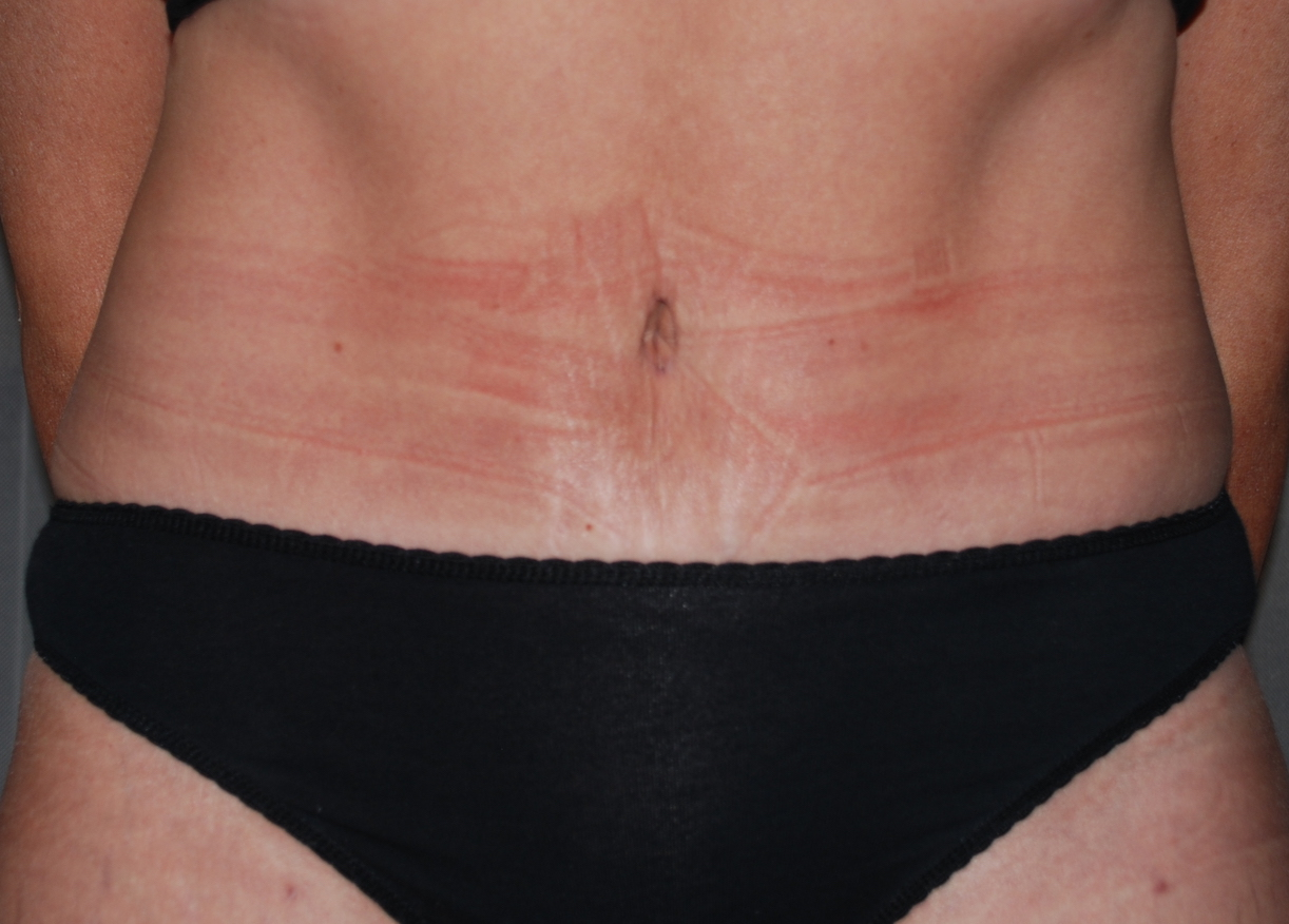 tummy fold cosmetic surgery harley london