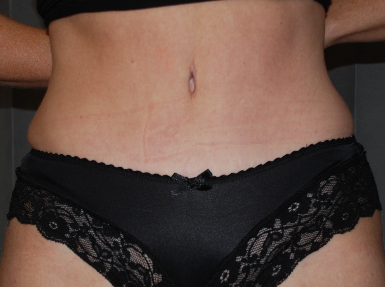 abdominoplasty harley cosmetic brighton