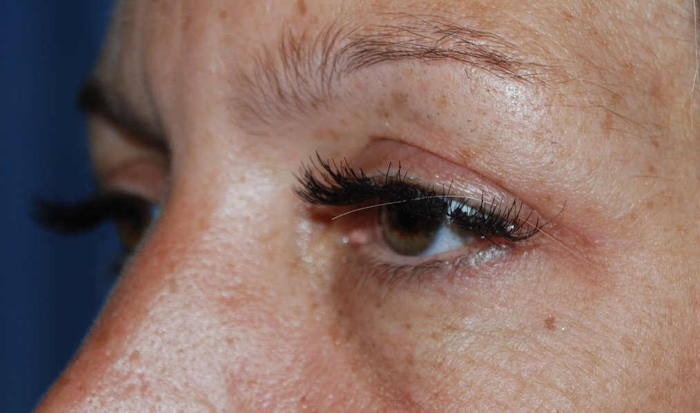 saggy eyelids cosmetic surgery