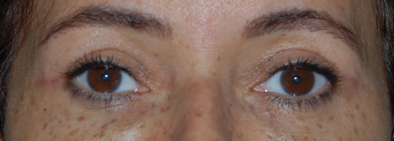 upper eyelid cosmetic harley brighton