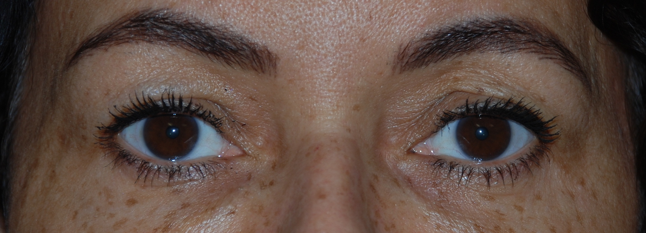 eyelid cosmetic surgery harley london