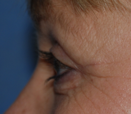 eyelid surgery harley london