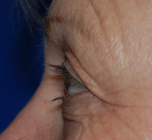 eyelid bags brighton