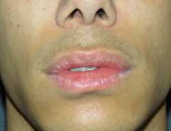 lip lift oliver harley plastic surgeon before op