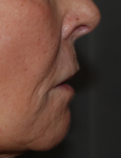 upper lip lift preop