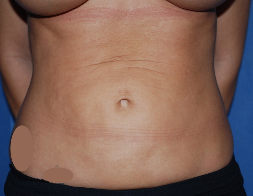 liposuction harley reigate cosmetic surgery