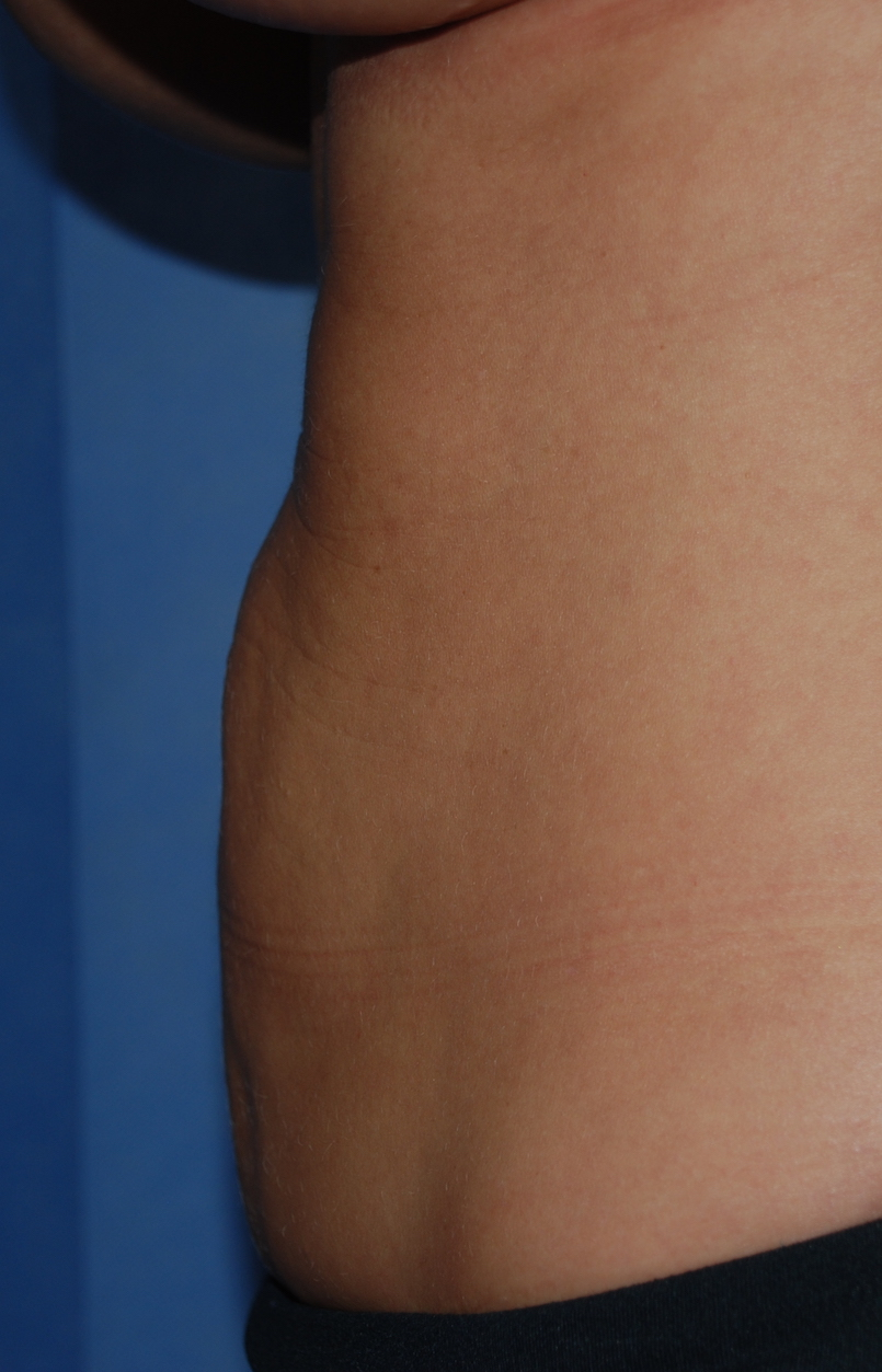 liposuction tummy croydon cosmetic surgery