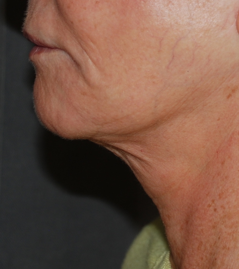 neck lift platysmaplasty harley kent KIMS hospital