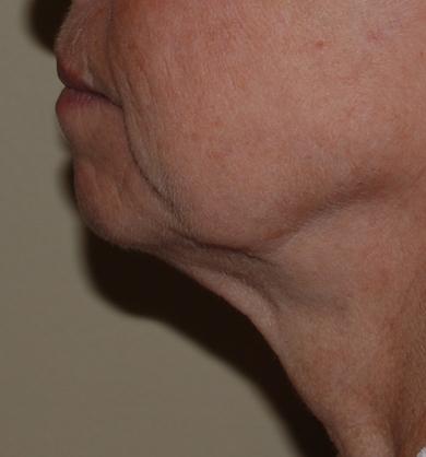 neck wrinkles neck lift harley
