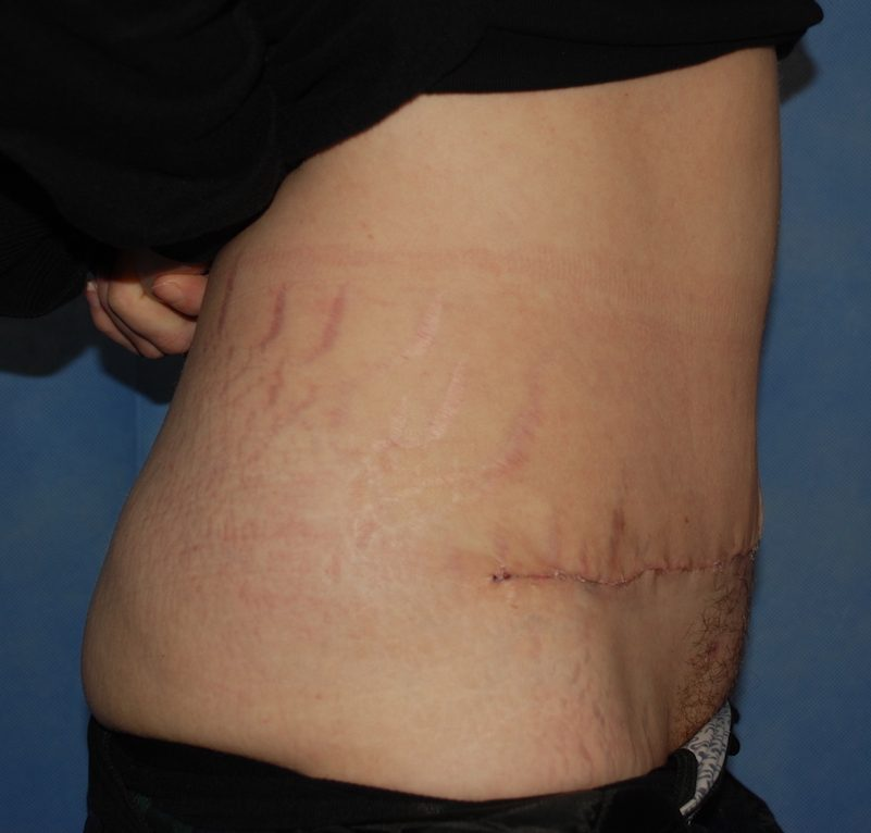 abdominoplasty harley post op