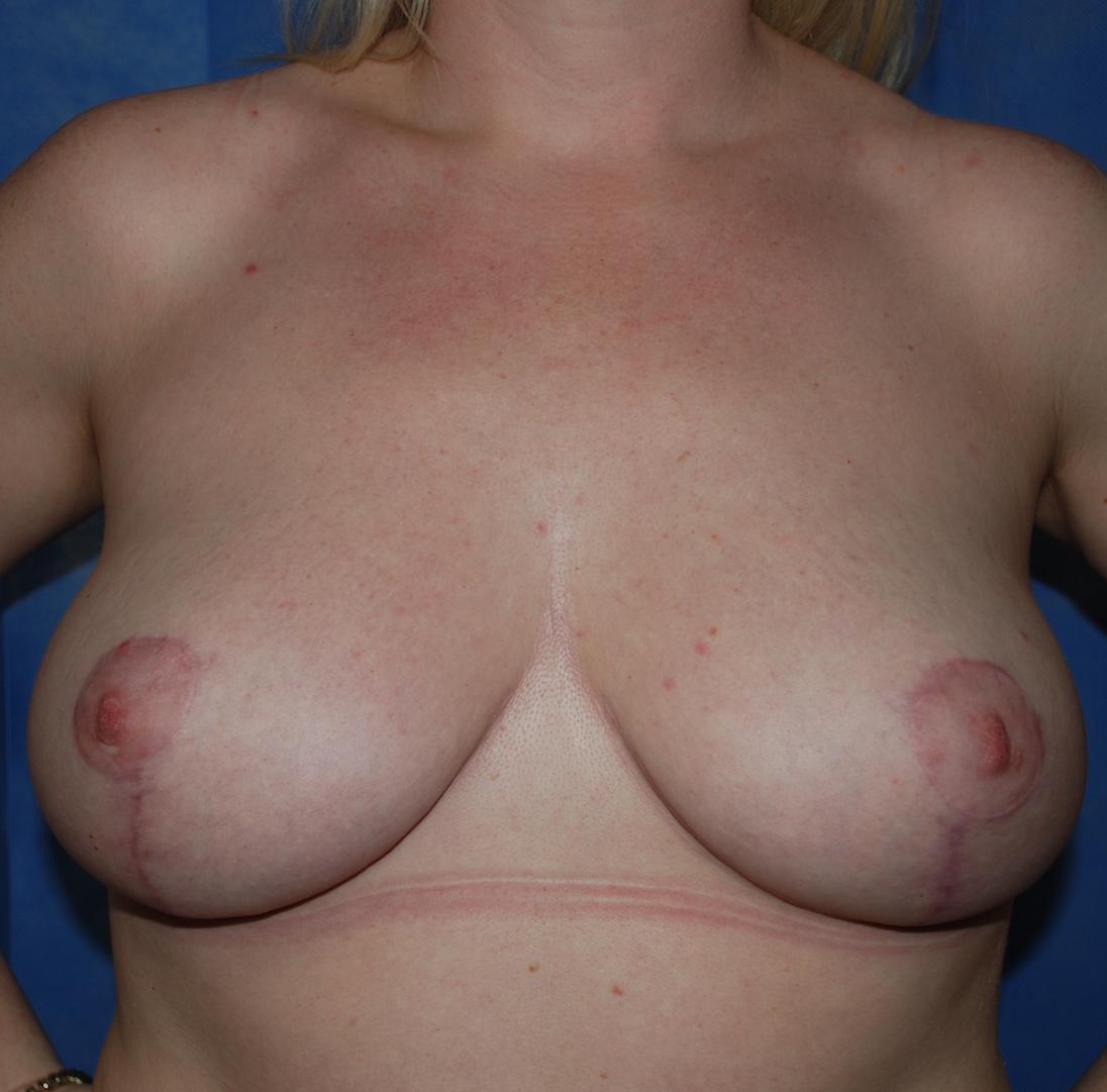 mastopexy breast uplift