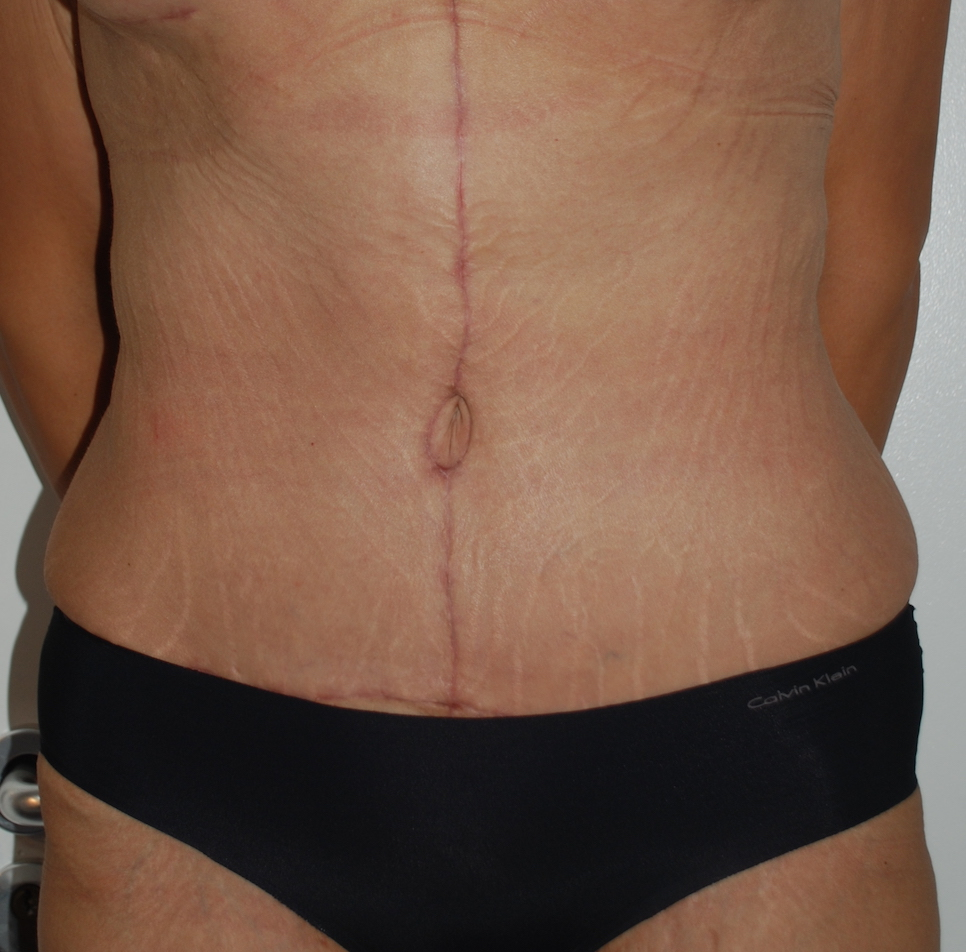 weightloss tummy tuck harley cosmetic surgery