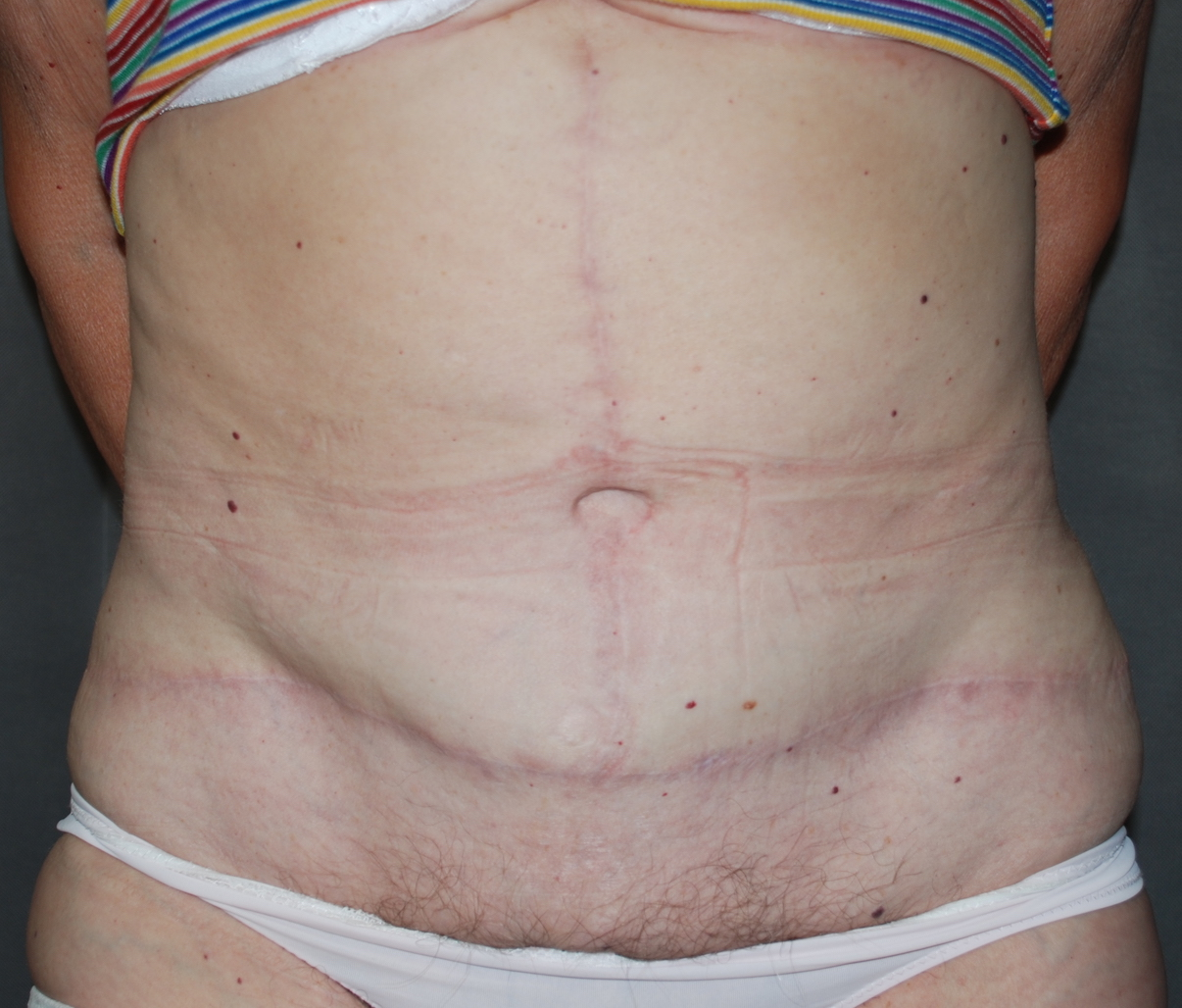 massive weight loss fleur de lis abdominoplasty