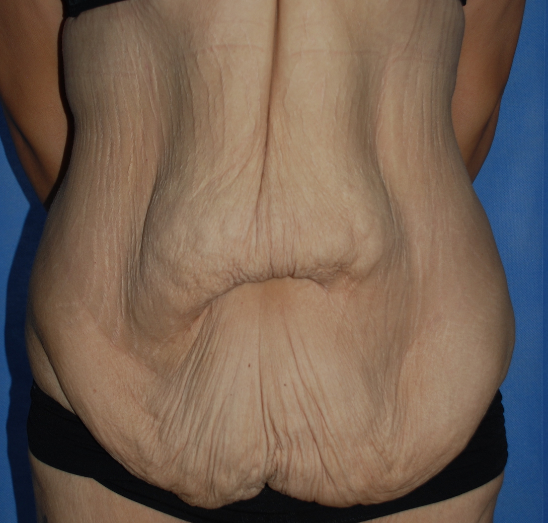 massive weightloss tummy tuck fleur de lis