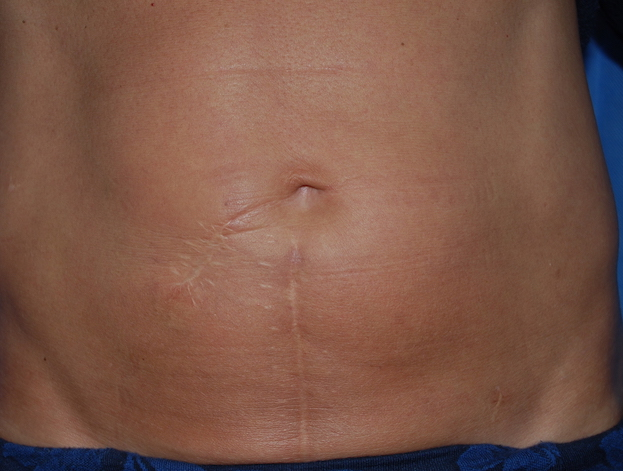 fat transfer scar correction sussex oliver harley