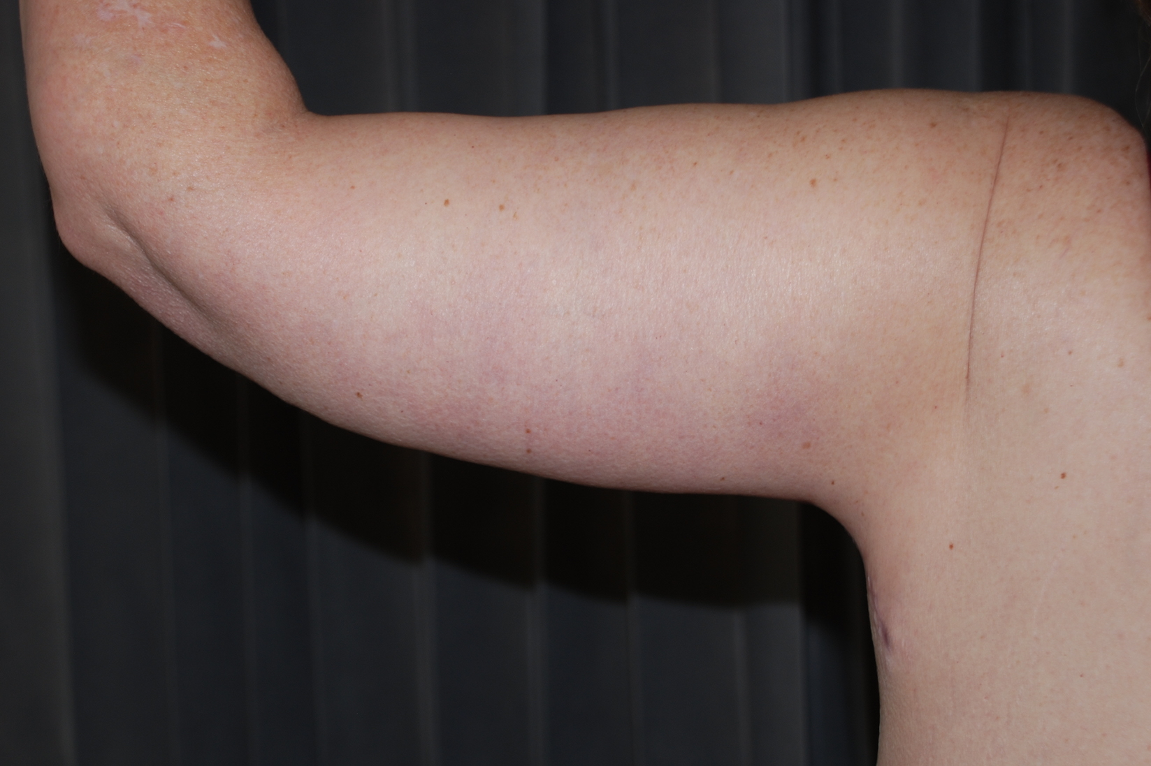 brachioplasty cosmetic harley weightloss