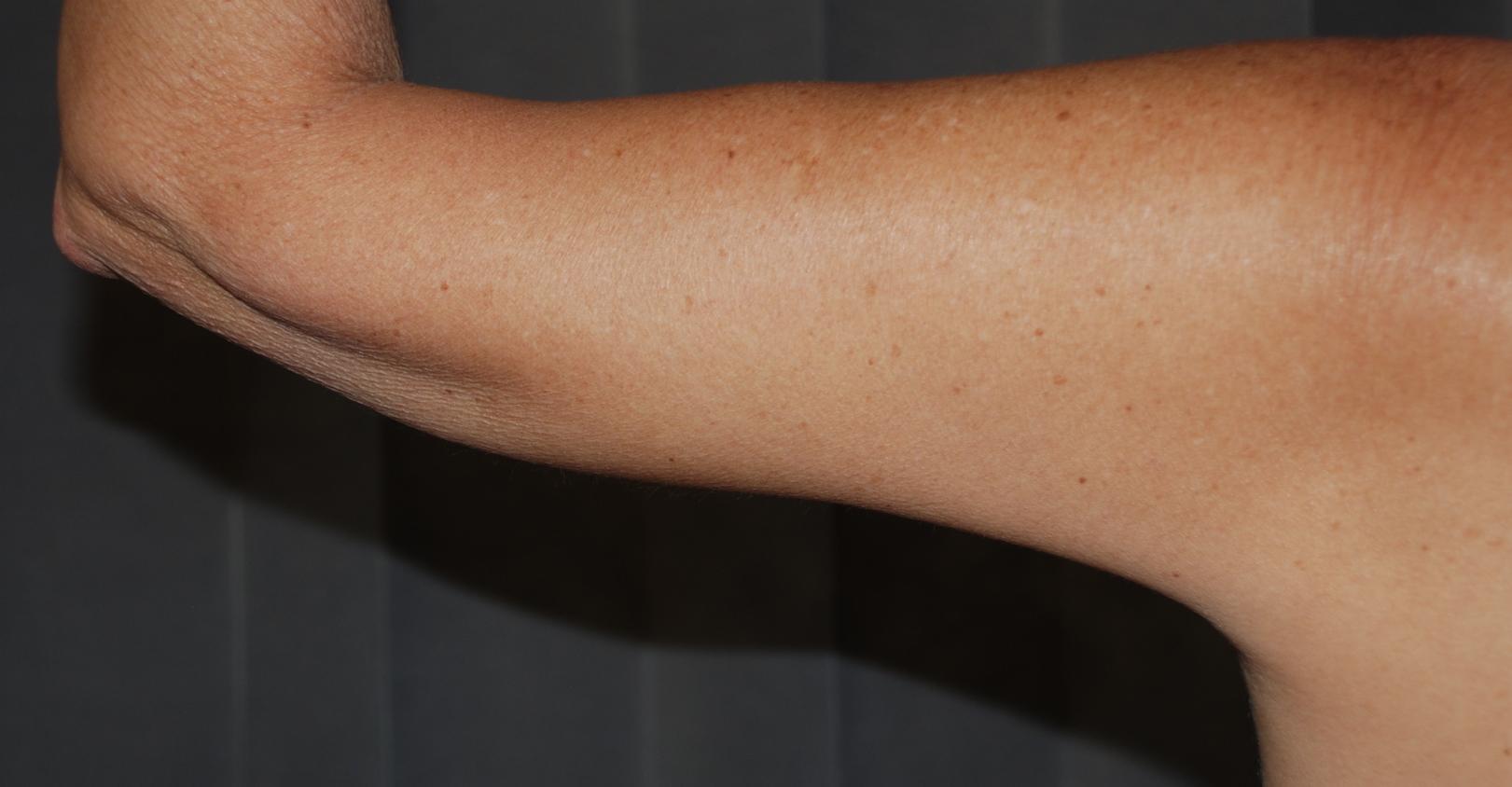 loose skin arms brachiplasty cosmetic surgery harley