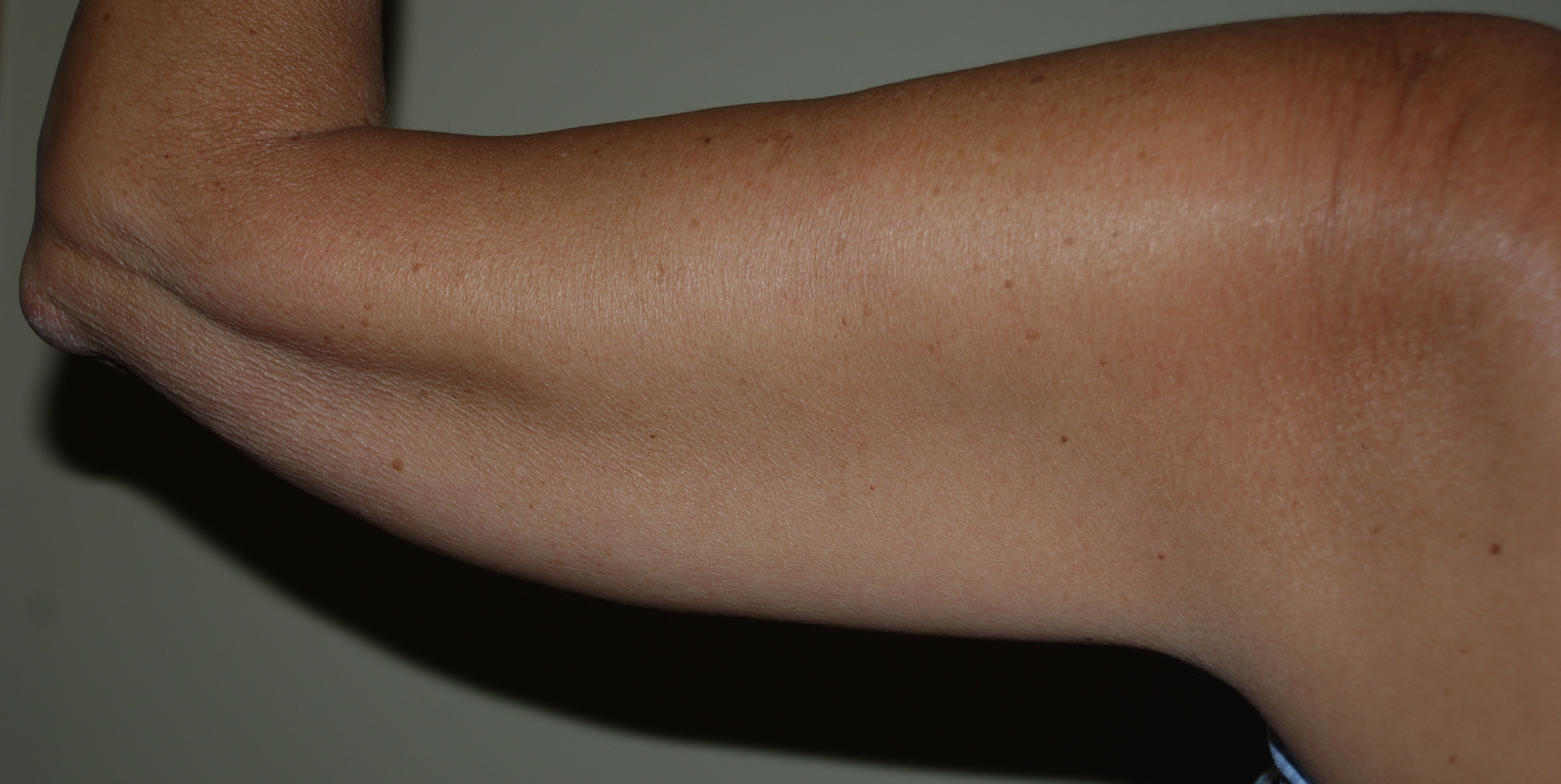 loose skin arms cosmetic surgery