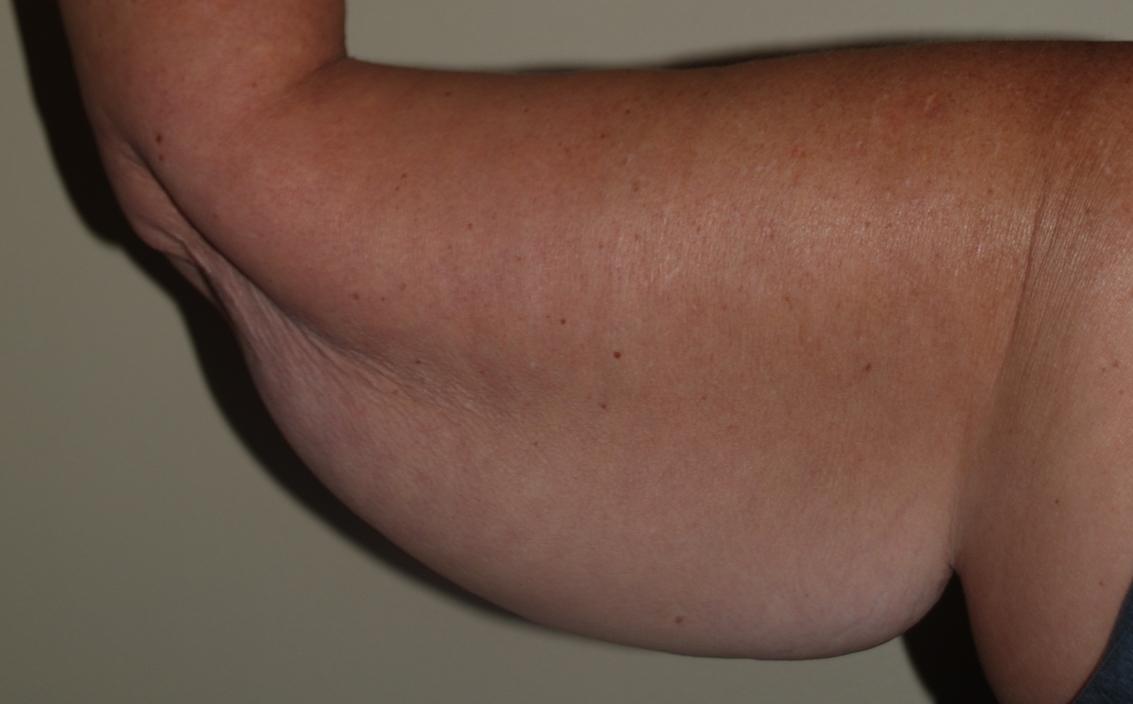 brachioplasty weightloss surgery harley maidstone