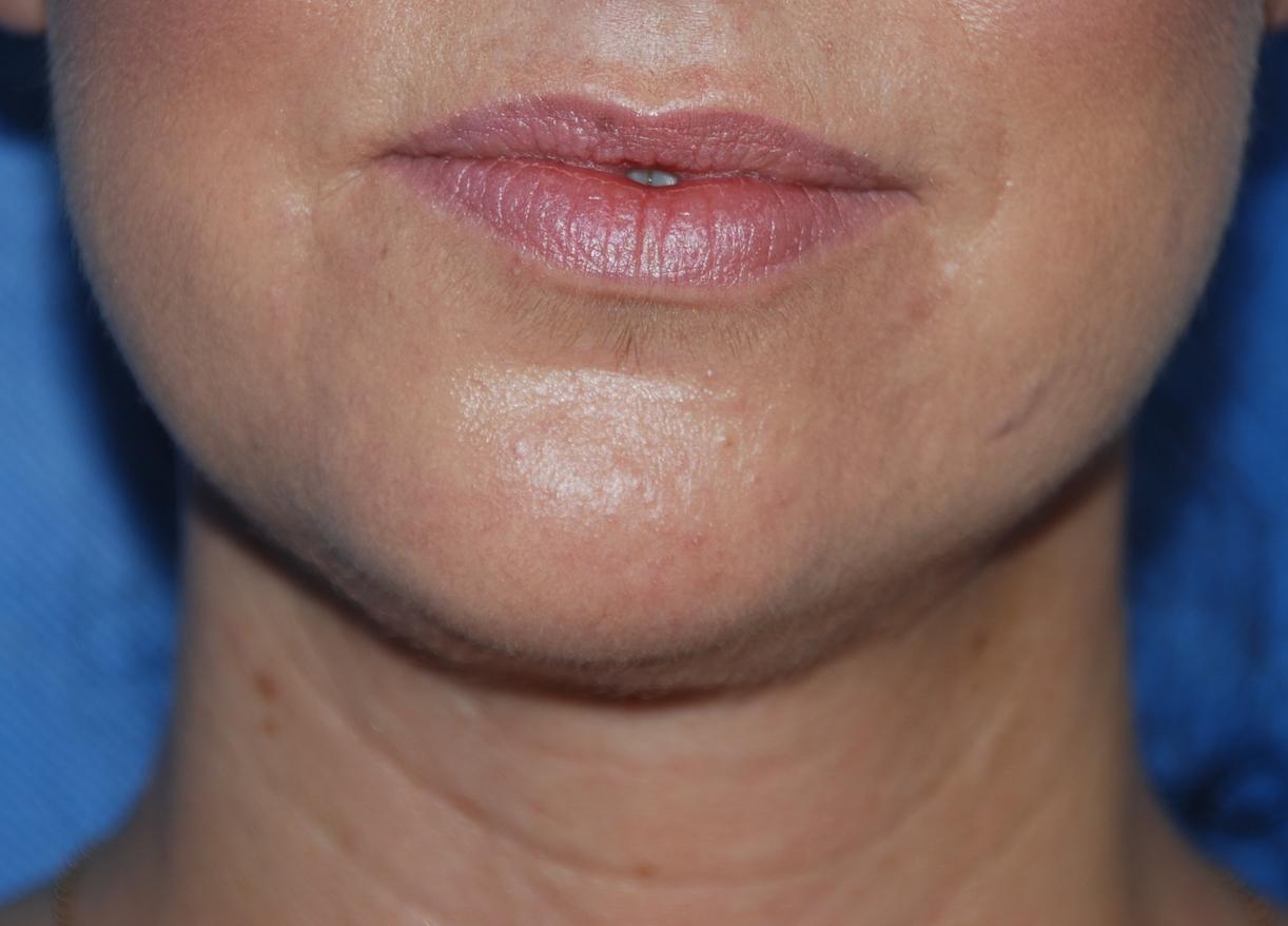 neck liposuction after op