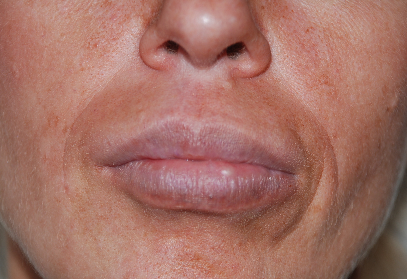 aquamid lip filler removal