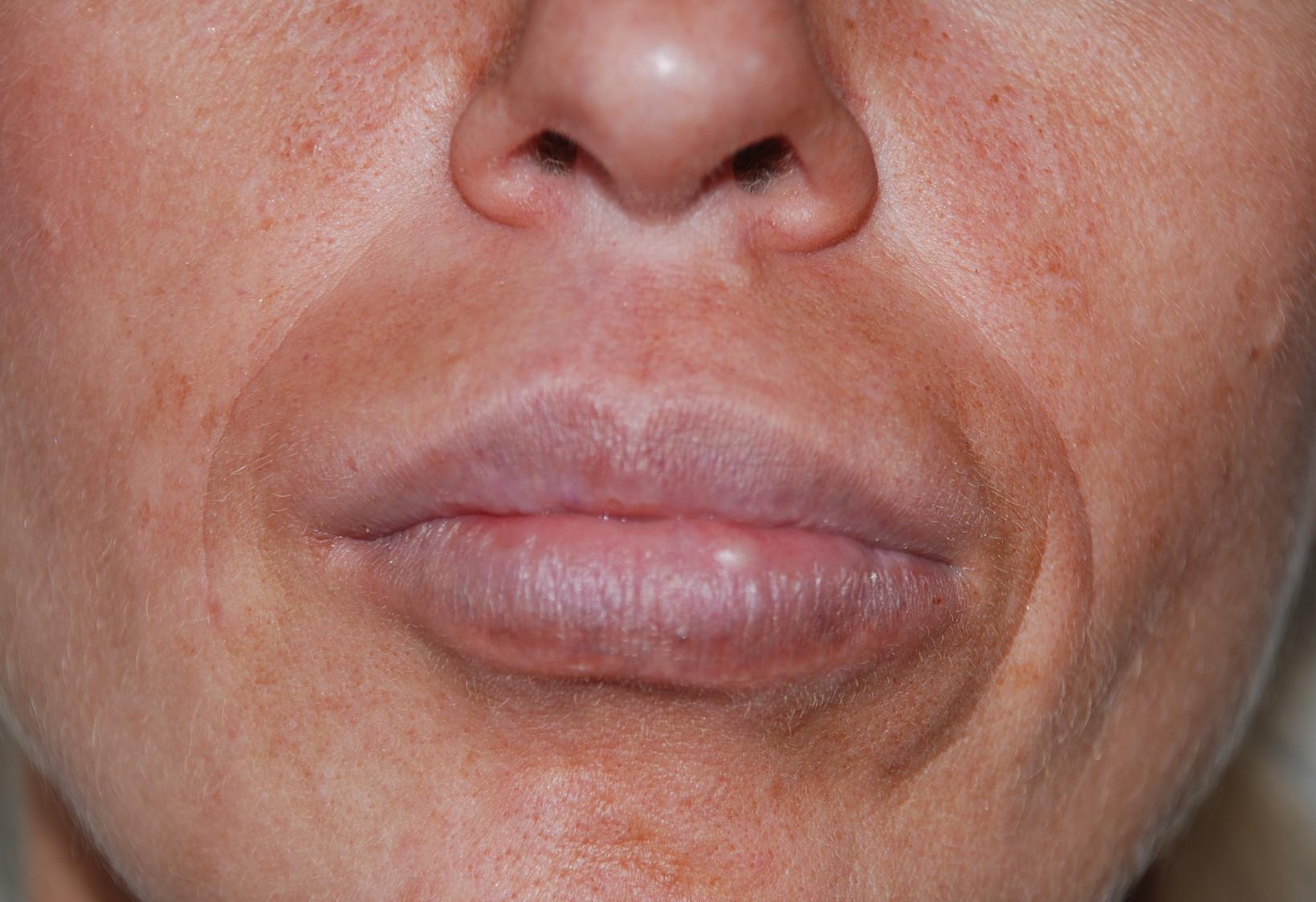 aquamid lip filler removal