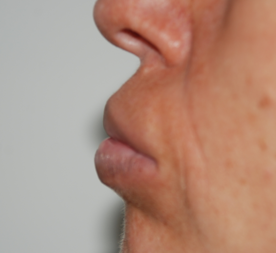lip filler removal aquamid