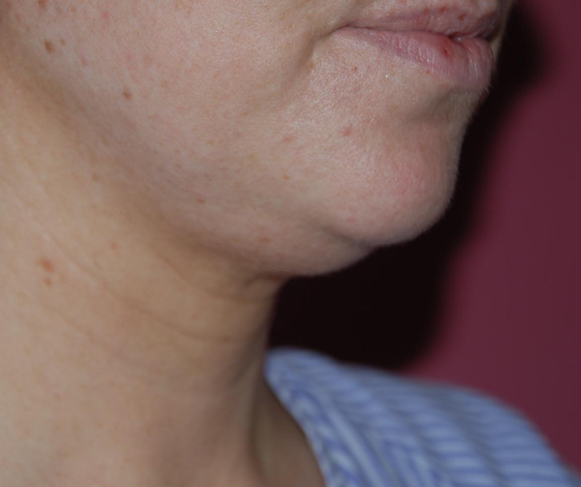 neck lipo