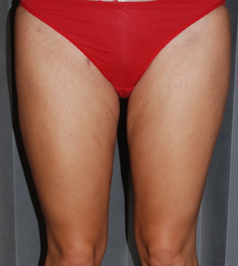 inner thigh liposuction post op